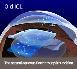 Old ICL-The natural aqueous flow through iris incision