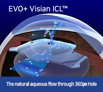 EVO+ Visian ICL™-The natural aqueous flow through 360㎛ Hole