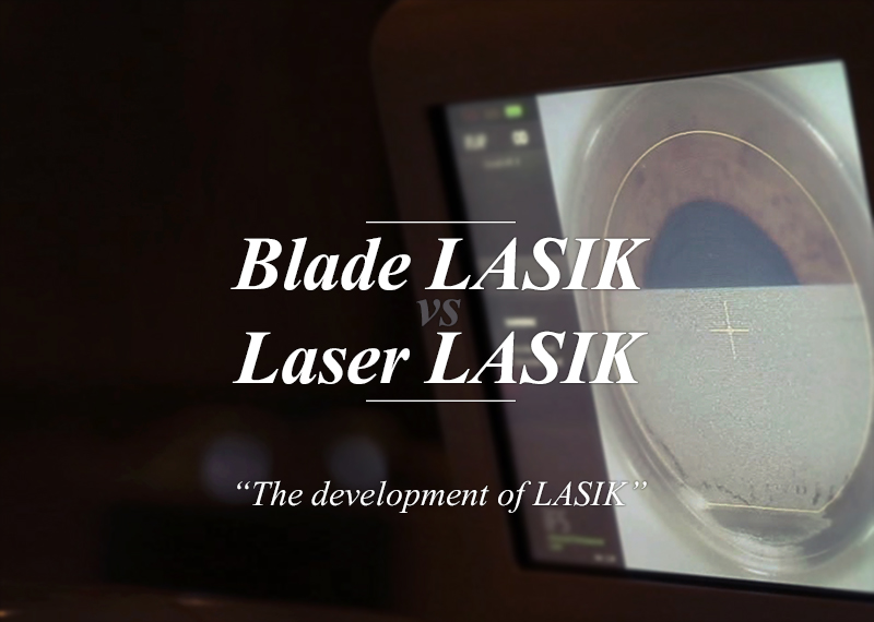 Blade LASIK vs Laser LASIK The development of LASIK