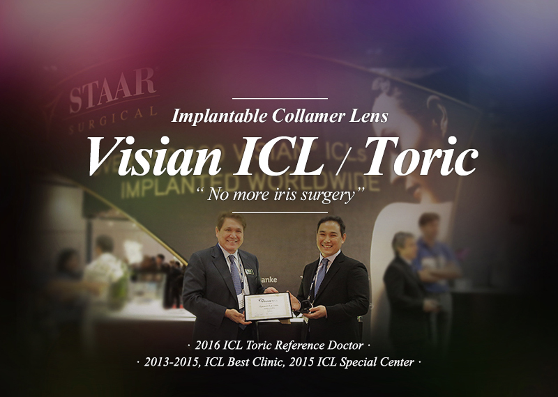 Implantable Collamer Lens Visian ICL / Toric No more iris surgery